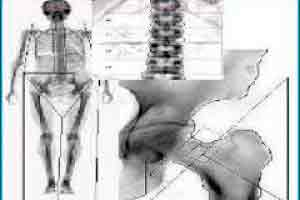 Auxiliar de Densitometria Óssea