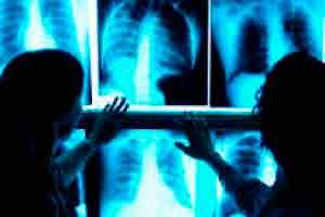 Auxiliar de Hemodinâmica na Radiologia
